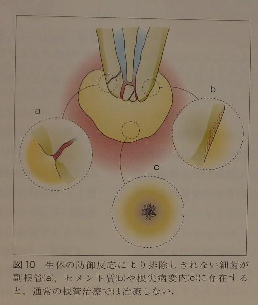 難治性の場合の治療法  歯根端切除術