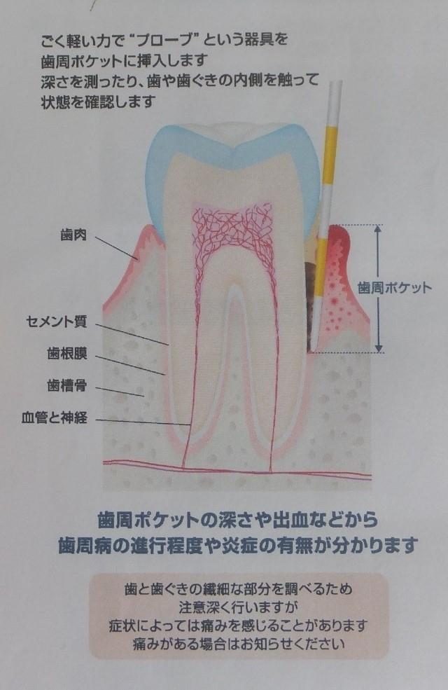 歯周病の発症