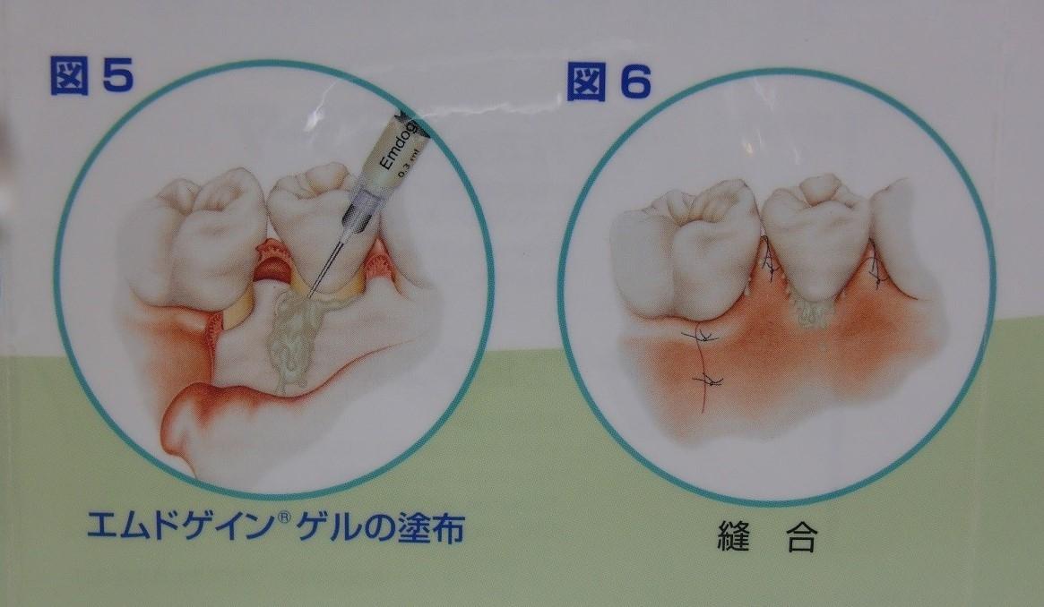 歯周組織再生療法(エムドゲイン療法、骨補填剤使用)